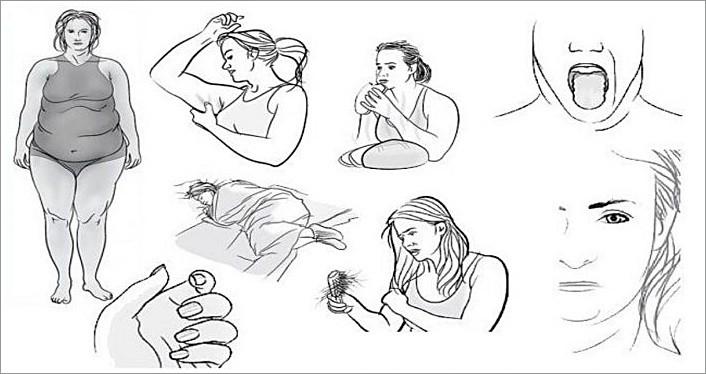 8 признаков дисфункции щитовидной железы, которые Вы не должны игнорировать!