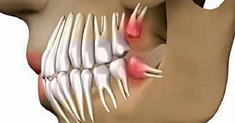 Попрощайтесь с зубными имплантатами! Открытие стоматологов - просто вырасти новый зуб!