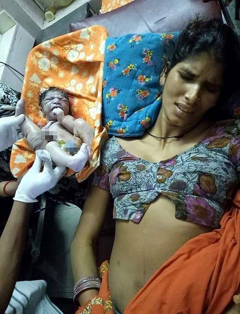 Врачи спасли малыша от близнеца-паразита. Мальчик выжил благодаря незнакомцу!