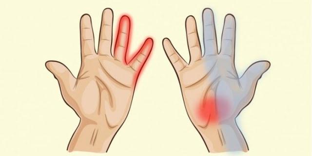 О болезнях расскажут руки. Симптоматика 7 недугов.