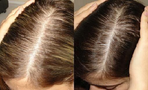 Горчица с сахаром превратят твои волосы в шевелюру!