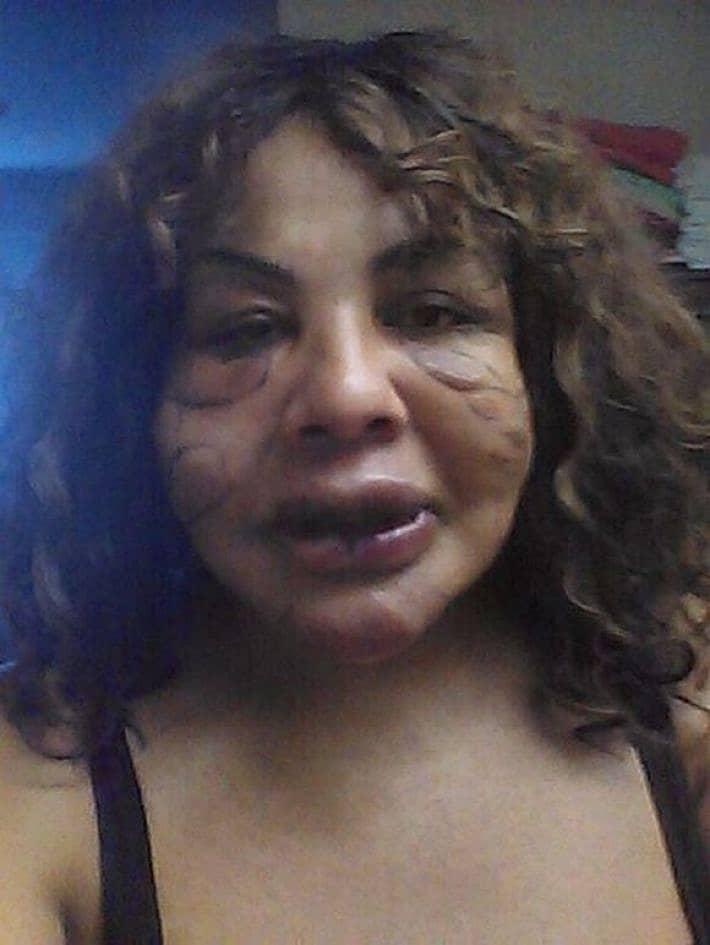 """""""Цементное лицо"""": хирурги вернули женщине красоту, после того как она легла под нож шарлатана!"""