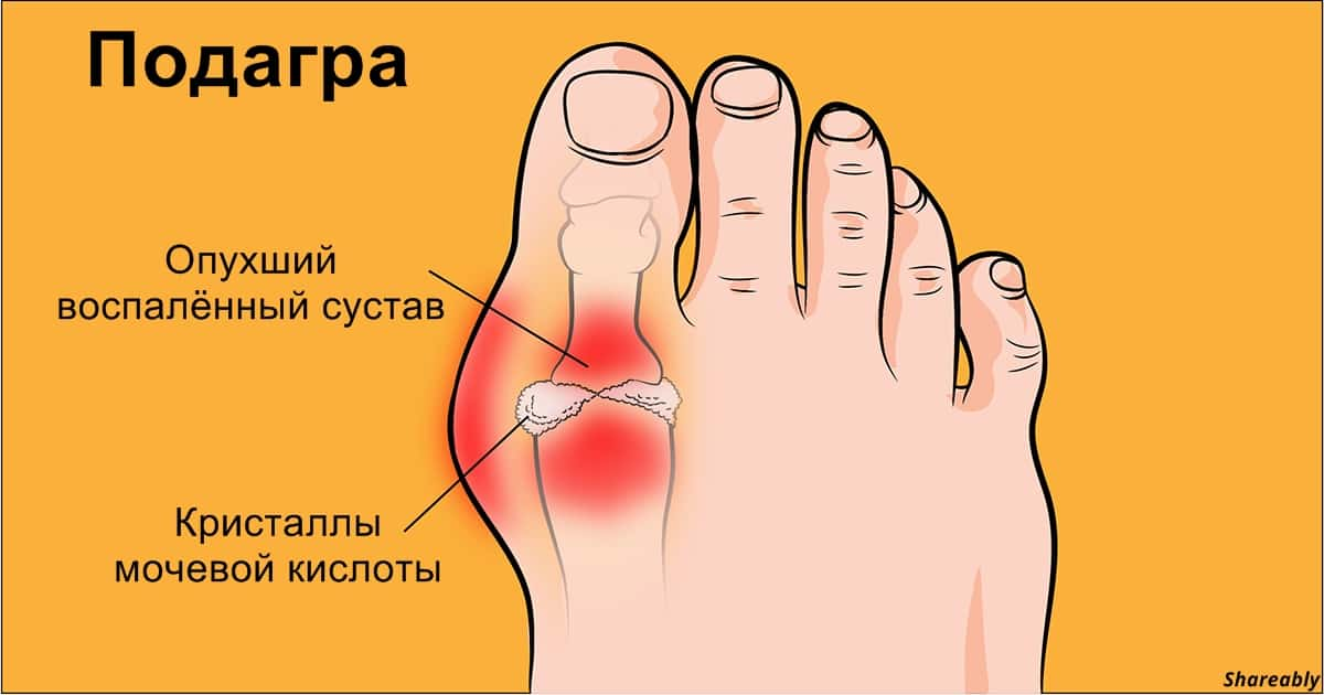 Подагра: простой способ вылечить болезнь дома!
