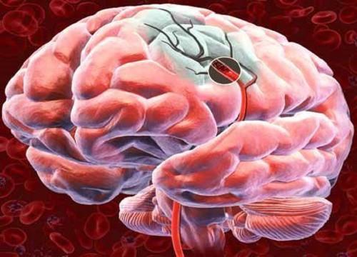 Как улучшить кровоснабжение головного мозга? 5 дельных советов.