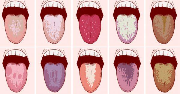 О болезни расскажет привкус во рту. Простая диагностика недугов.