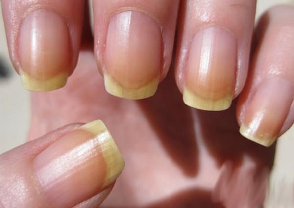 Посмотрите на свои ногти - они расскажут о здоровье!