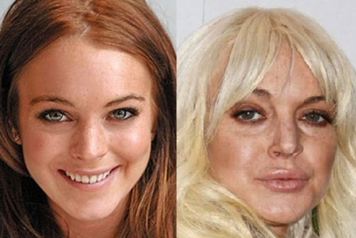 20 голливудских звёзд после пластики.