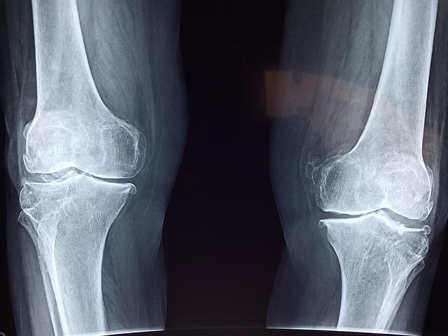 Артроз: наколенники или протезирование коленного сустава